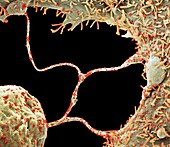Cells infected by Covid-19 virus particles, SEM