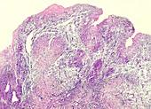 Human spinal tuberculosis, light micrograph