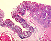 Rectal adenocarcinoma, light micrograph