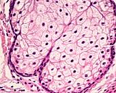 Sebaceous gland, light micrograph
