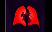 Healthy lungs, CT scan