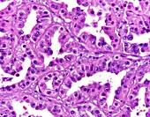 Papillary renal cell carcinoma, light micrograph