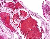 Multilocular cystic renal neoplasm, light micrograph