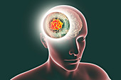 Brain mucormycosis, illustration