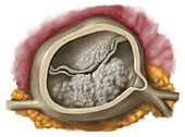 Aortic valve calcification, illustration