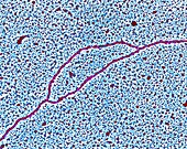 DNA replication at bubble stage, TEM