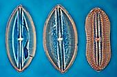 Fossil diatom, light micrograph