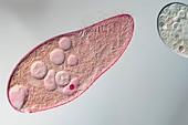 Blepharisma americana protozoan, light micrograph