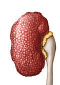 Kidney in chronic hypertension, illustration