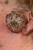 Keratocanthoma