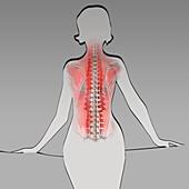 Female back muscles, illustration