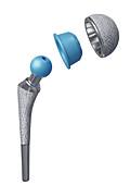 Total hip joint prosthesis, illustration