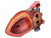 Ventricular septal defect, illustration
