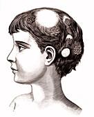 Ringworm, 19th century illustration