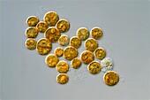Symbiodinium dinoflagellates, light micrograph