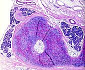 Throat cancer, light micrograph