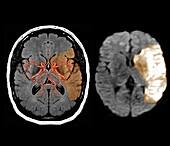 Stroke, MRI scans