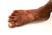 Pellagra due to niacin deficiency