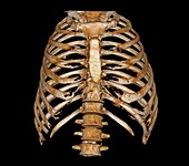 Rib cage, 3D CT scan