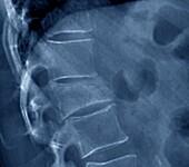Fractured lumbar vertebra, X-ray