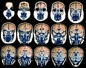 Child brain, MRI scans