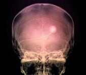 External ventricular drain, X-ray