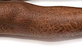X-linked ichthyosis