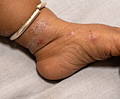 Scabies infection on the skin