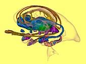 Limbic system in Alzheimer's disease, 3D MRI scan