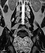 Neurofibromatosis, MRI scan