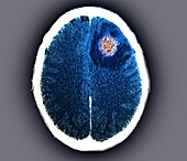 Brain abscess, CT scan