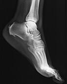 Heel pain, X-ray