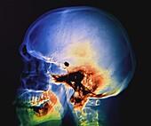 Aneurysm treatment, X-ray