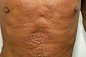 Vesiculopustular lesions