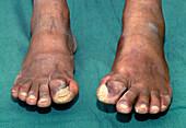 Big toe deformity