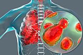 Pulmonary cryptococcosis, illustration