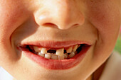 Boy missing tooth
