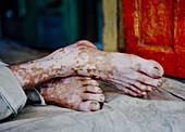 50 to 55 years, 50 to 60 years, 50-55 years, 50-60 years, Disorder, Feet, Fifties, Ghat, Ghats, India, Man, Orange, Portrait, Religion, Sitting, Skin, Strange, Varanasi, Vitiligo, F17-704595, agefotostock