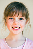 Young girl with missing front teeth, gold coast queensland australia