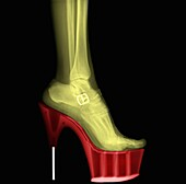Coloured X-ray of a woman leg wearing Stiletto High-Heeled Shoe