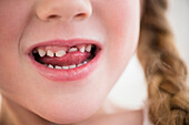 Caucasian girl wiggling loose tooth, Jersey City, New Jersey, USA