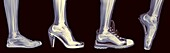 X-ray of a woman´s foot in 4 different shoes (from left to right) Trainers, High Heel, Running and Ballet.
