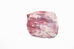Santa Fe cut (gracilis muscle)