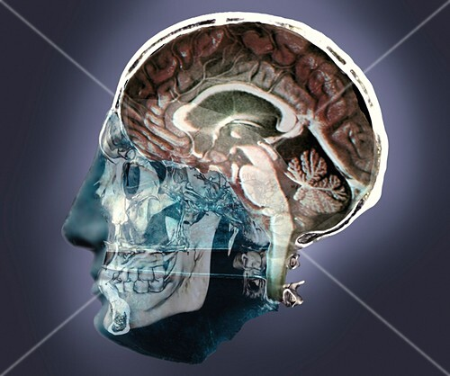 Thought,conceptual 3D MRI and CT image