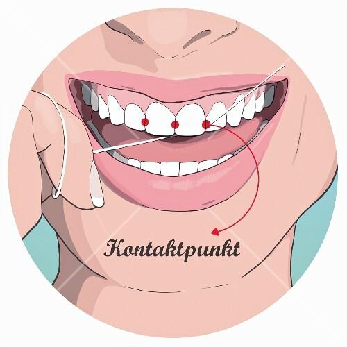Zahnseide Zwischen Den Zähnen