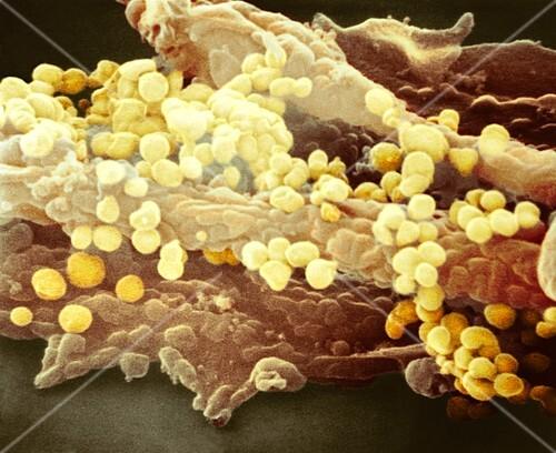 H1N1 flu virus particles,SEM
