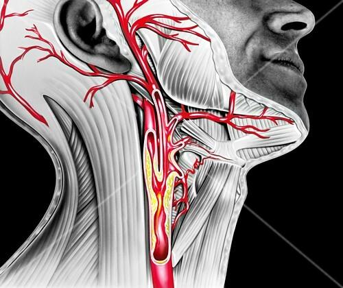 Carotid atherosclerosis,artwork